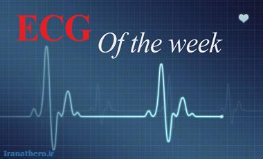 ECG of the week -109 : Description Quiz